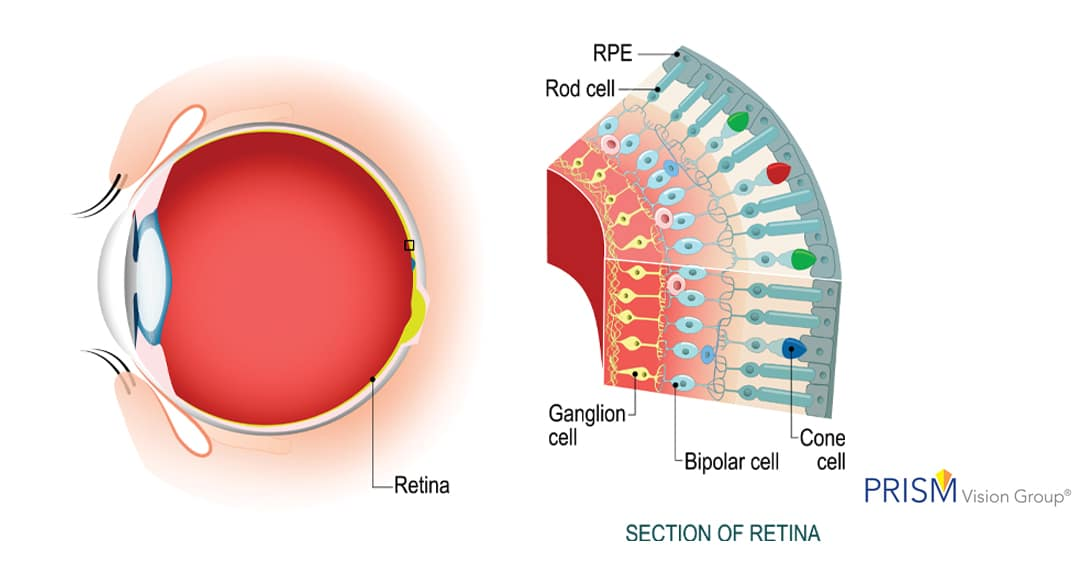 What is a Retinal Tear or Torn Retina?